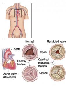 Stenoza Aortică  -  Simptome și Tratament