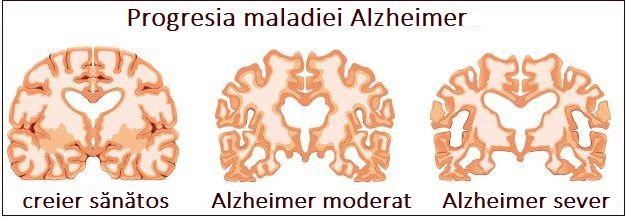 Creier Alzheimer