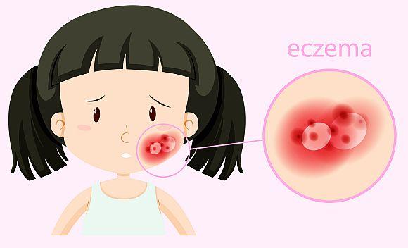 Tratament naturist eczeme