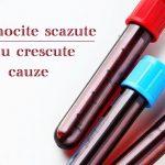 Monocite scazute sau crescute - cauze