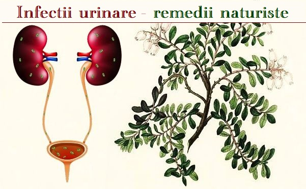 Remedii infectia vezicii urinare