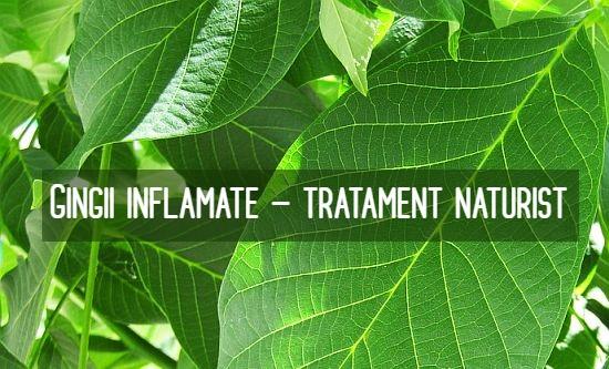 Gingii inflamate tratament naturist