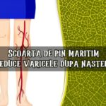Scoarta de pin amelioreaza varicele