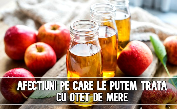 Afectiuni pe care le putem trata cu otet de mere