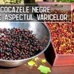 Cocazele negre reduc aspectul varicelor si durerile asociate