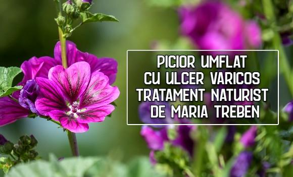 Picior umflat cu ulcer varicos – tratament naturist recomandat de Maria Treben