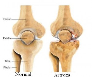 hormoni antiinflamatori articulați fixator pentru genunchi