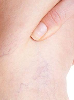 tratament pt circulatia sangelui la picioare