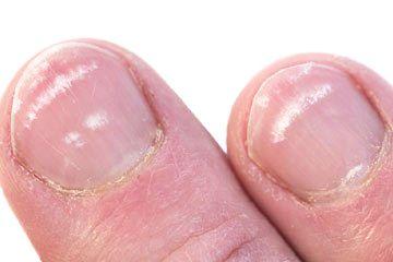 dermatita atopica bebelusi tratament hemoroizi interni