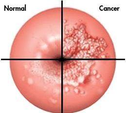 Cancer Uterin - Cauze și Simptome