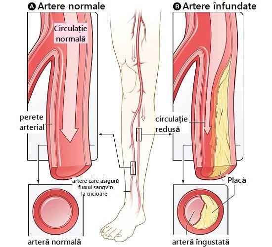 Artere Înfundate - Simptome, Cauze