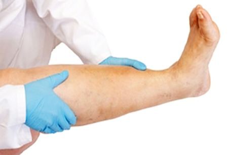 Insuficienta venoasa cronica: picioare umflate, dureroase si grele? - Farmacia Ta - Farmacia Ta