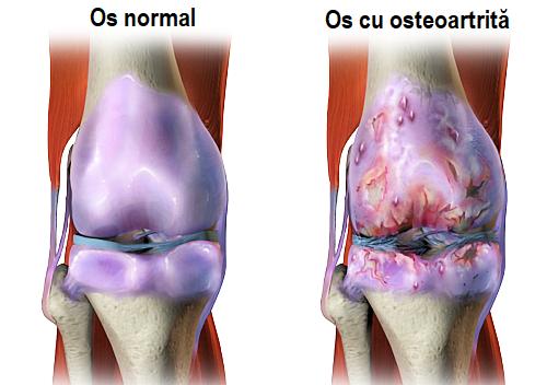osteoartrita factori de risc)