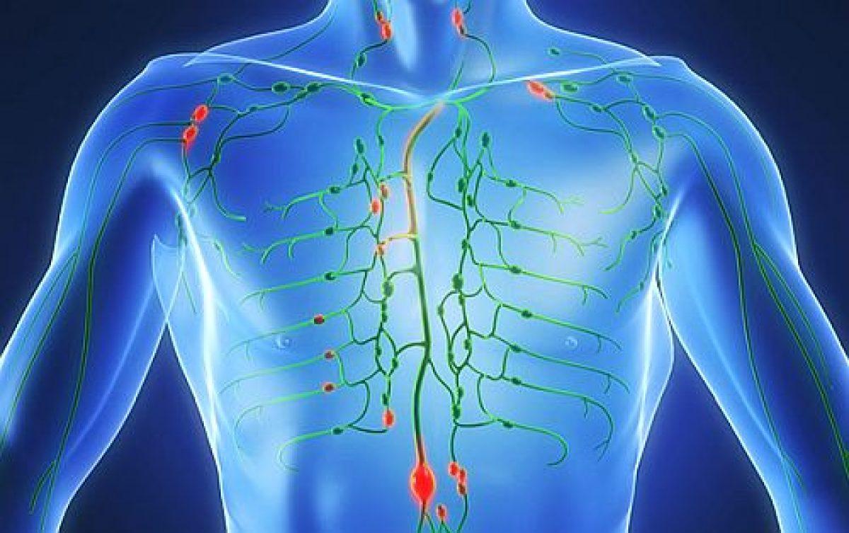 cancer limfatic manifestari