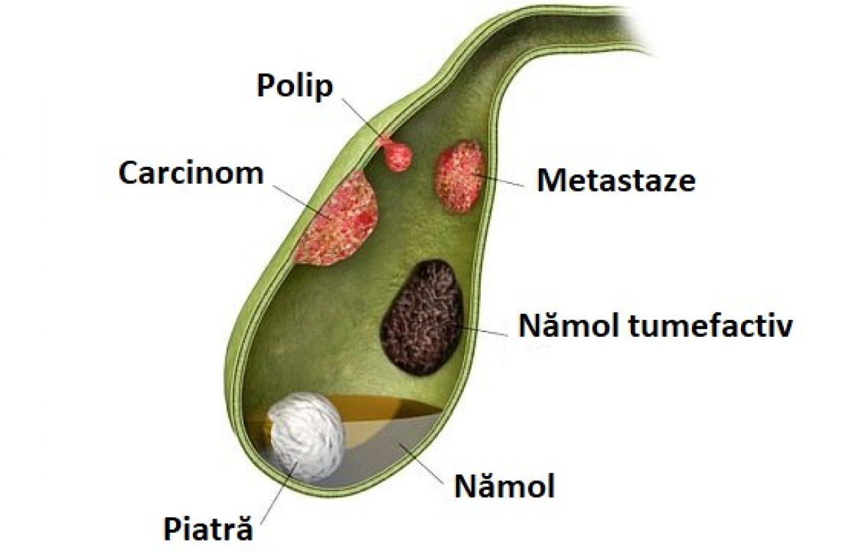 tratamentul vezicii biliare