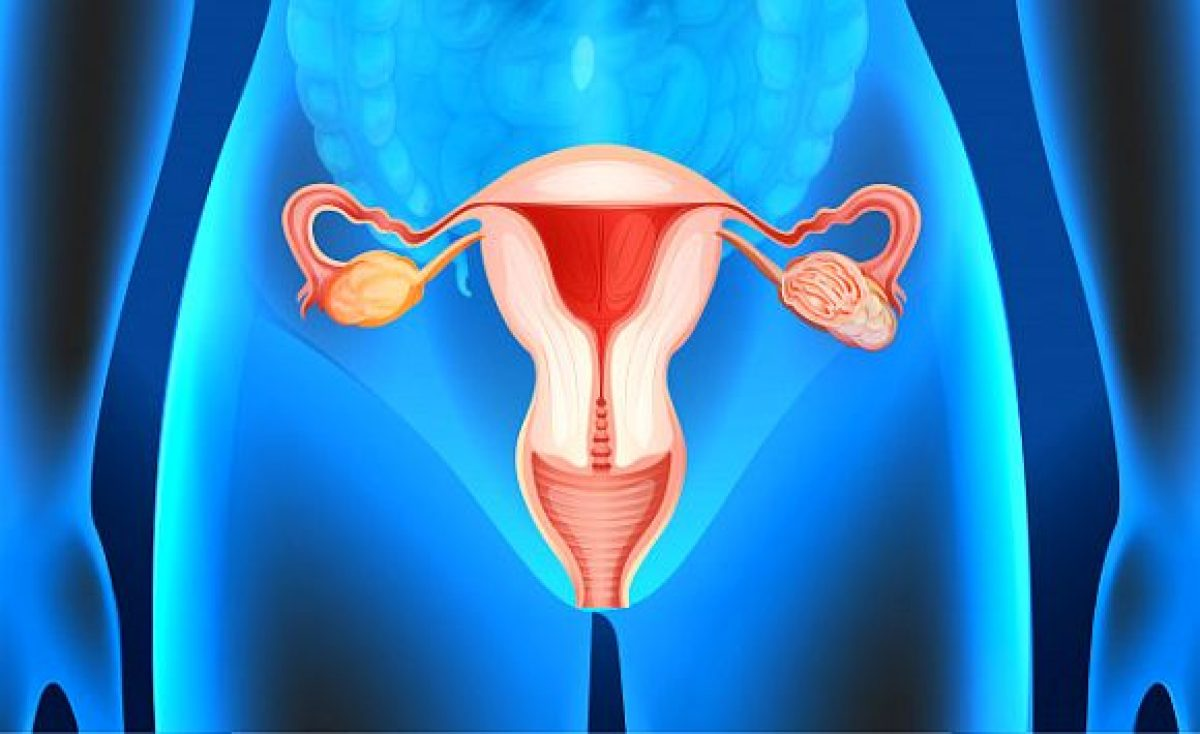 Chist ovarian functional